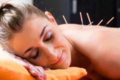 Carta da parati Frau bei Akupunktur mit Nadeln im Rücken