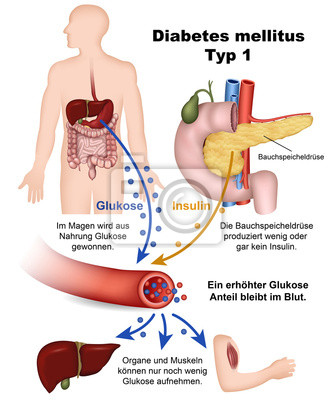 Diabete mellito di tipo 1, con la descrizione illustrazione